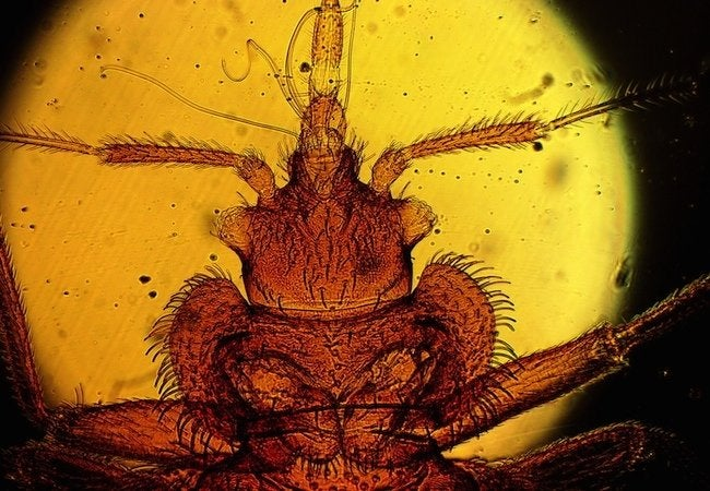 How to Tell If You Have Bed Bugs - Microscope