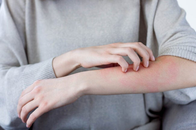 What Does Poison Sumac Look Like Sumac Causes Skin Rash